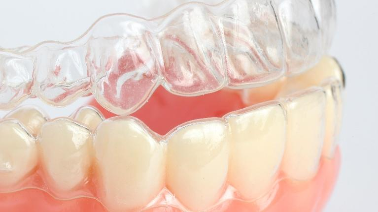 Common Conditions Treated with Orthodontics | Monroe Dental Arts