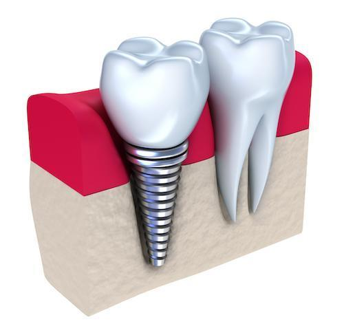 illustration of dental implant with crown