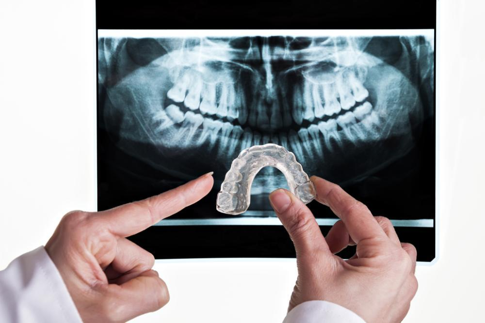 nightguard being held in front of dental xray