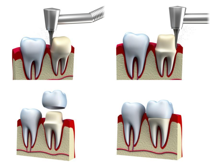 dental crown | monroe township NJ dentist