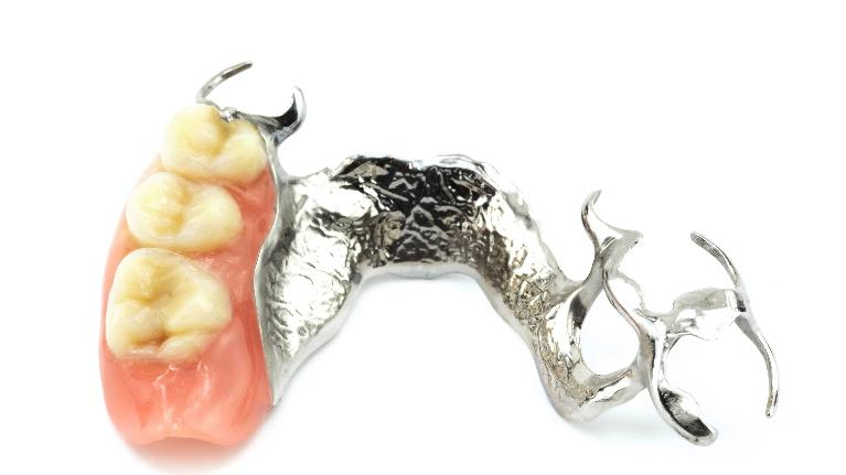 Dentures | Monroe NJ | Monroe Dental Arts