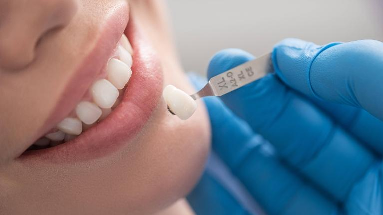Dental Veneers | Monroe Dental Arts