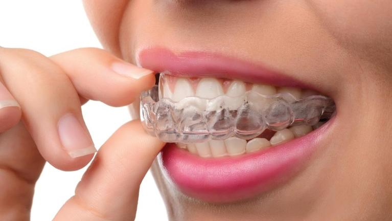 Close up of woman using invisalign