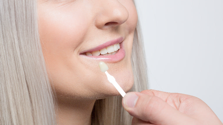 cosmetic dentistry | porcelain veneers