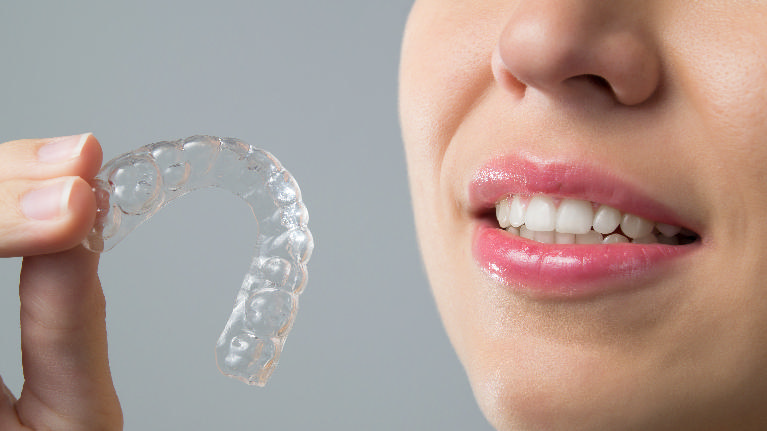 Invisalign | Monroe Dental Arts
