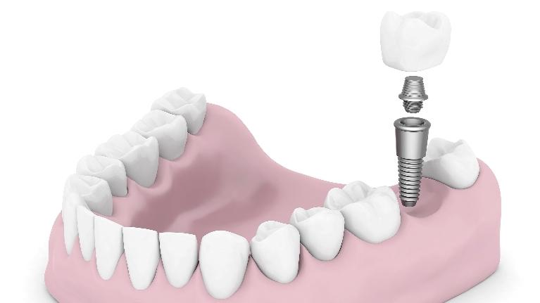 Dental Implants | Monroe Township NJ